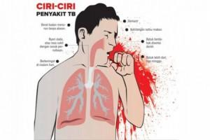 1.680 Warga Lampung Terinfeksi Virus TBC