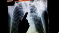 2018, TB Paru di Lampura 717 Kasus