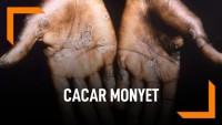 Cegah Cacar Monyet, KKP Imbau Tak Singapura Kalau Tak Penting