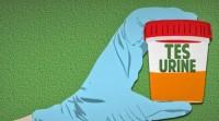 Hasil Urine Personel Polsek Tanjungbintang Positif Mengandung Meta ampetamhine