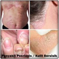 Psoriasis, Penyakit Kulit yang Sangat Menagganggu