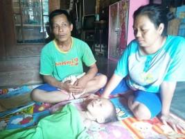 Sakit dan tak Miliki Biaya Pengobatan, Bocah Ini Butuh Uluran Tangan