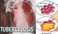 Selama 2018, Community TB HIV Care Aisyiyah Temukan 843 Kasus Tuberkulosis
