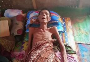 Suwandi, Penderita Tuberkulosis di Candipuro Butuh Bantuan