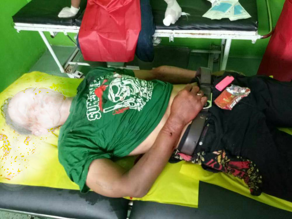LAMPUNG POST | Mayat Pria di Pinggir Jalan Kampung Tua, Diduga Korban Penganiayaan