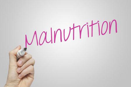 LAMPUNG POST | Kekurangan Nutrisi Turunkan Kecerdasan Anak