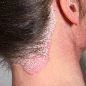 LAMPUNG POST | Penyakit Psoriasis Bila Tak Ditangani akan Sulit Disembuhkan