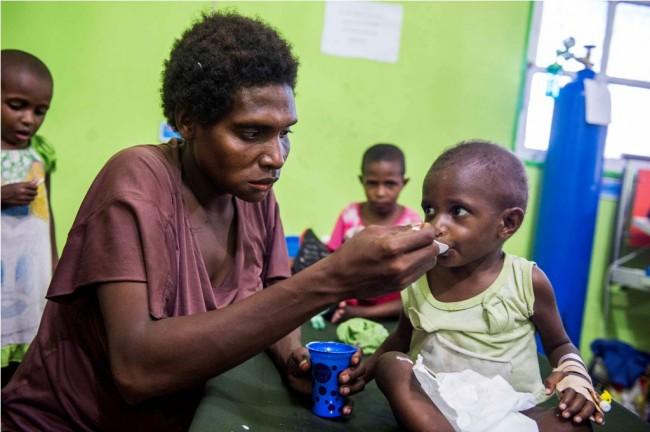 Penyebab Kurang Gizi di Asmat Mulai Terungkap
