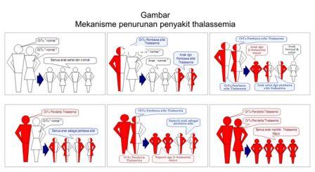 LAMPUNG POST   Sadari dan Kendalikan Bahaya Thalasemia