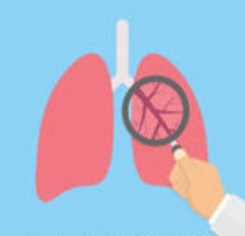 LAMPUNG POST   Beta-3 dan Kanker Paru-paru