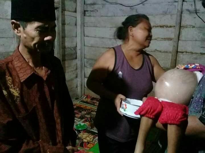 LAMPUNG POST | Hendak Operasi di Jakarta, Bocah Pengidap Tumor Ganas Asal Tubaba Butuh Bantuan