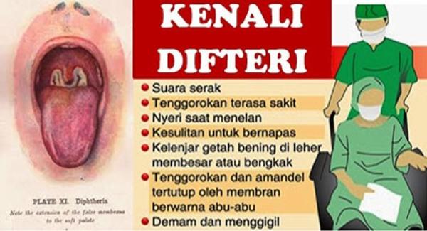 LAMPUNG POST | Lampung Bebas Penyakit Difteri
