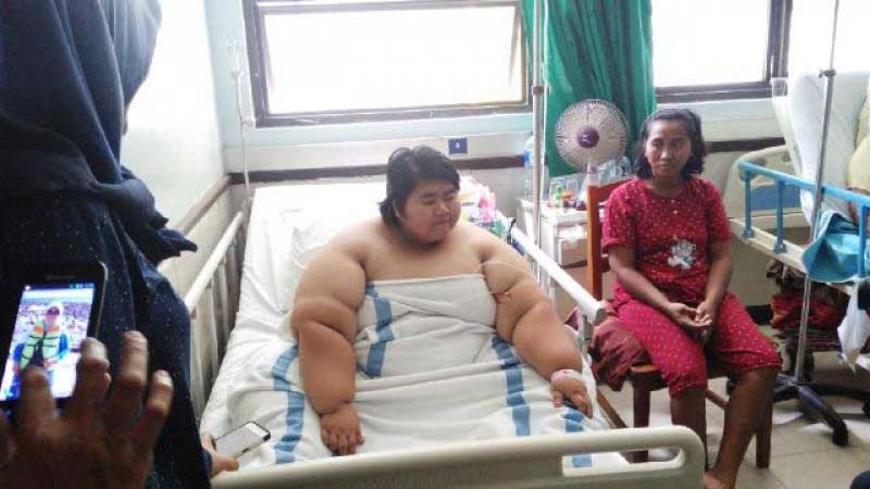 Obesitas Picu Penyakit Serius